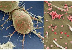 NCCN临床实践指南:不明原发部位肿瘤(2020.V2)