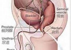 NCCN临床实践指南:膀胱癌(2020.V3)