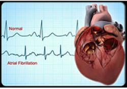 "Heart:<font color=""red"">心房</font><font color=""red"">颤动</font>患者家庭收入与不良结局之间<font color=""red"">的</font>关系"