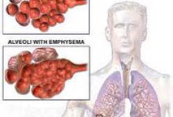 Chest:支气管内超声引导下经支气管活检后感染并发症的危险因素